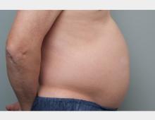 溶解 注射 お腹 脂肪